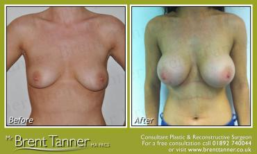 A before and after picture of a Breast Augmentation procedure