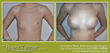 Breast Augmentation procedure - before and after pictures