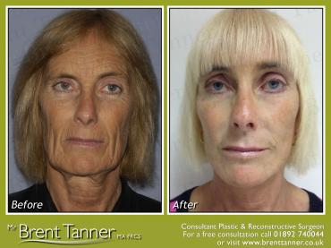 A face lift and Pearl Fusion Laser resurfacing procedure before and after picture