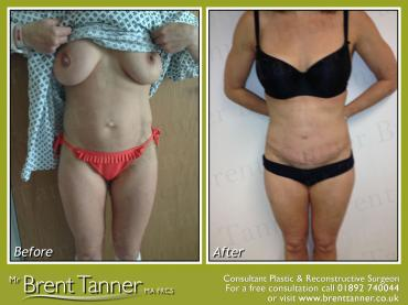 A before and after picture of a Abdominoplasty procedure