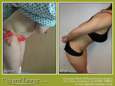 Another before and after picture of a Abdominoplasty procedure - side view