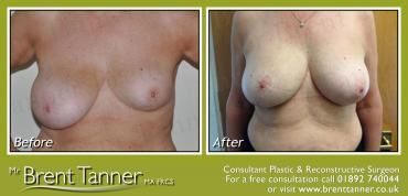 A before and after picture of a Breast Assymetry procedure