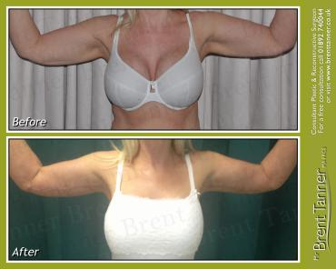 The Brachioplasty procedure (bat wings) - before and after picture