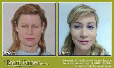 A before and after picture of an Endo Brow Lift procedure
